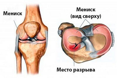 Травма мениска в футболе